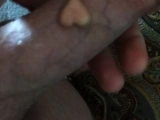Minha pérola (implante) em meu pau: d